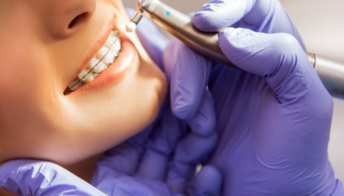 Orthodontists: What You Need to Know About Them