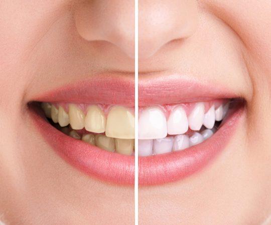 Whitening Your Teeth